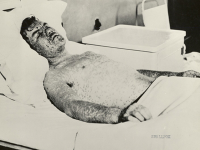 A man who caught smallpox in Milwaukee is shown in this 1925 photo.