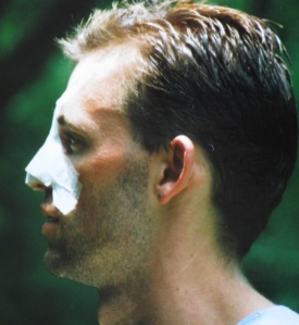 This is how I looked shortly after my nose was broken and then reset in July 1993.